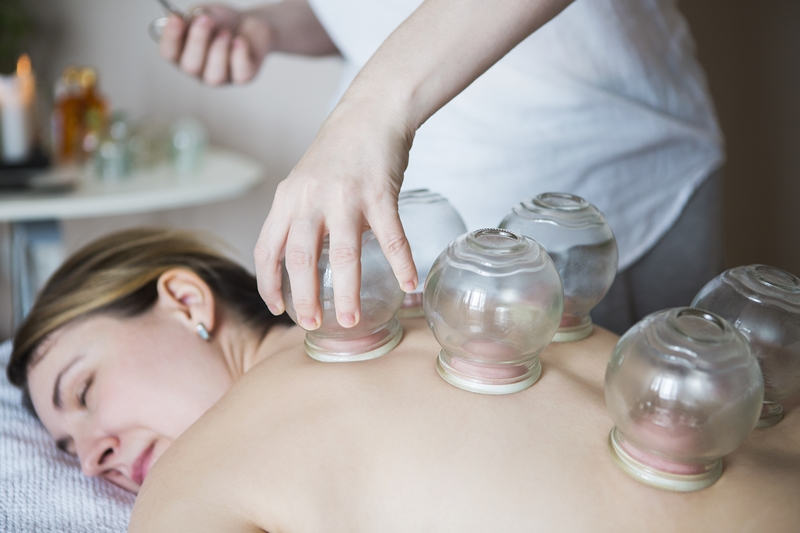 Cupping 800x533